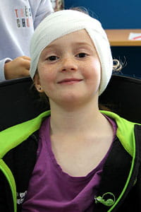 A young girl with her head bandaged up