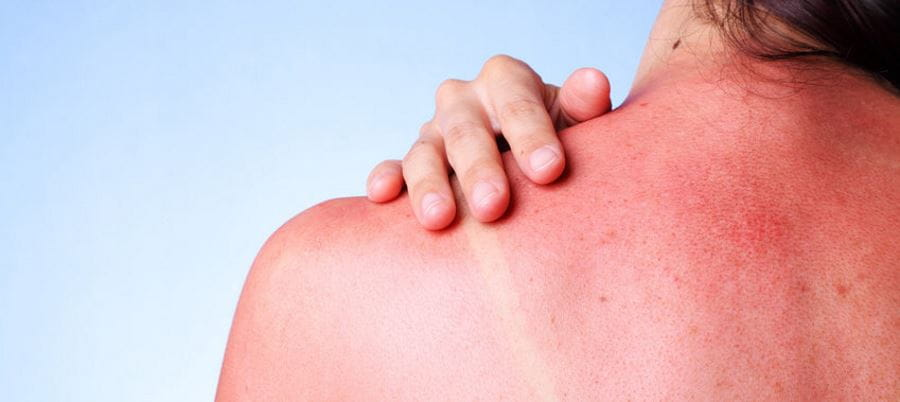 image of a woman with a sunburnt back